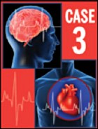 Case 3: An 80-Year-Old Woman with Atrial Fibrillation and Multiple Cardiovascular Risk Factors - EXPIRED