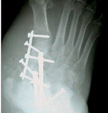 Foot casts may limit harm caused by neuroarthropathy