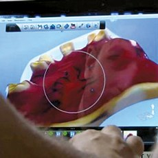 3-D technology may hasten denture sizing for residents