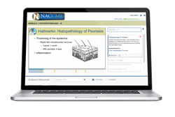 New online education series on psoriasis launched