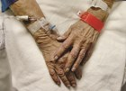 Hospital IV therapy may drain Medicare Part D, news analysis finds