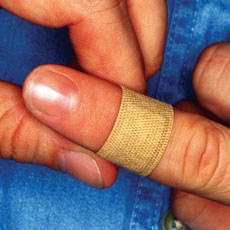 Mast cells could actually inhibit wound healing.