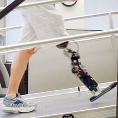 An artificial leg that is controlled by the user's thoughts may give new independence.