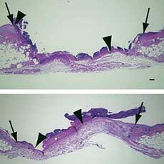 A synthetic BLT2 agonist helped wounds heal faster (bottom) than untreated wounds (top).