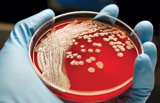 This is what Methicillin-resistant Staphylococcus aureus (MRSA) looks like in a petri dish. Experts say it and other bugs can exist virtually invisibly in and around bathing, lift and other equipment